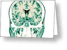 Normal Coronal Mri Of The Brain Greeting Card