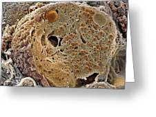Pancreas Cell, Sem Greeting Card