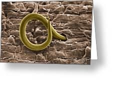 Root Knot Nematode Sem Greeting Card