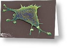 Sarcoma Cancer Cell Greeting Card