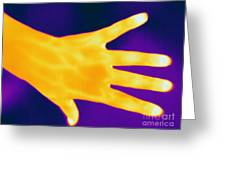 Thermogram Of A Hand Greeting Card