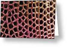 Diatom Alga, Sem Greeting Card
