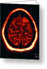 Mri Of Normal Brain Greeting Card