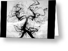 Angiogram Of Embolus In Cerebral Artery Greeting Card