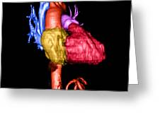 Color Enhanced 3d Cta Of Heart Greeting Card