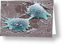 Dividing Cancer Cell, Sem Greeting Card