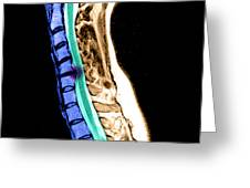 Herniated Disc In Cervical Spine Greeting Card