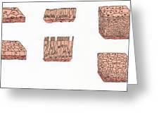 Illustration Of Epithelium Types Greeting Card