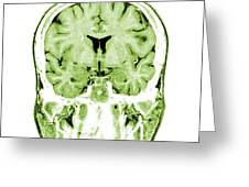 Normal Coronal Mri Of The Brain Greeting Card by Medical Body Scans