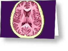 Normal Cross Sectional Mri Of The Brain Greeting Card