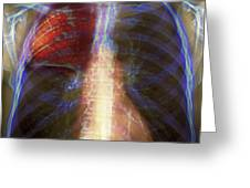 Pneumonia, X-ray Greeting Card