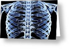 Ribcage, Computer Artwork Greeting Card
