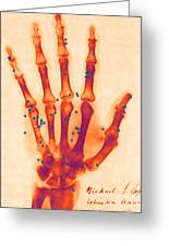 X-ray Of Gunshot In The Hand Greeting Card