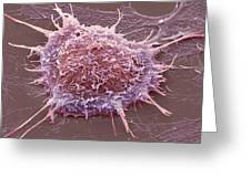 Cervical Cancer Cell, Sem Greeting Card