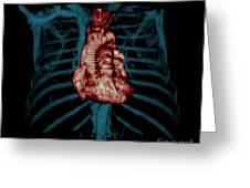 3d Ct Reconstruction Of Heart Greeting Card