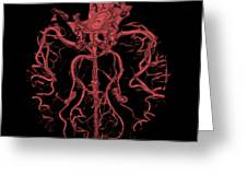 Intracranial Ct Angiogram Greeting Card