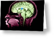 Mri Colloid Cyst Of Third Ventricle Greeting Card