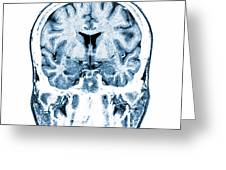 Normal Coronal Mri Of The Brain Greeting Card