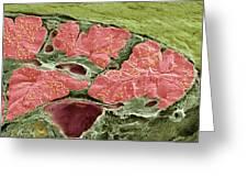Pancreas Tissue, Sem Greeting Card