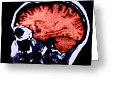 Mri Of Normal Brain Greeting Card