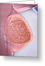 Breast Tumour, X-ray Greeting Card
