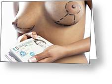 Cosmetic Breast Surgery Greeting Card