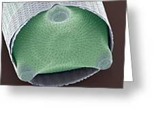 Diatom Shell, Sem Greeting Card