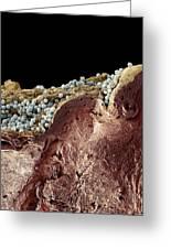 Pyoderma Skin Disease, Sem Greeting Card by Steve Gschmeissner