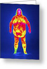 Obese Woman, Thermogram Greeting Card