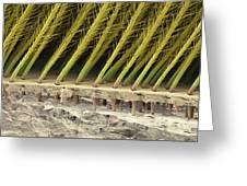 Tarantula Hair, Sem Greeting Card