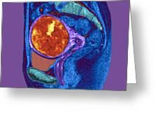 Uterine Fibroid, Mri Scan Greeting Card