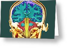 Healthy Brain, Mri Scan Greeting Card