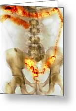 Ulcerative Colitis, X-ray Greeting Card