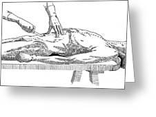 A Handbook Of Morbid Anatomy Greeting Card
