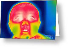 A Thermogram Of A 5 Month Old Baby Greeting Card