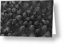 American Toad Skin, Sem Greeting Card by Ted Kinsman