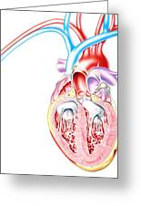 Artwork Of Heart In Congestive Heart Failure Greeting Card