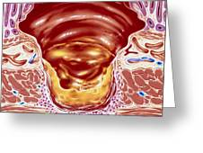 Artwork Showing Close-up Of Gastric Ulcer Greeting Card