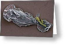 Bacteria And Neutrophil Cell, Sem Greeting Card