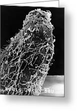 Bacteria On Sorghum Root Tip Greeting Card