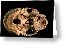 Base Of Skull 5, Sima De Los Huesos Greeting Card