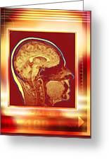 Brain, Mri Scan Greeting Card