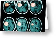 Brain Tumor Greeting Card