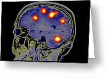 Brain Tumors Greeting Card