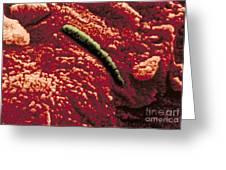 Carbonate Glob Of Meteorite Greeting Card