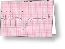 Cardioversion, 1 Of 2 Greeting Card