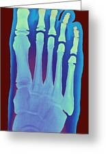 Child's Foot, X-ray Greeting Card