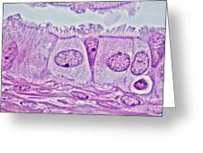 Ciliated Epithelium, Phase Microscopy Greeting Card