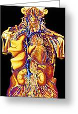 Colour Artwork Of Abdominal & Thoracic Nerves Greeting Card