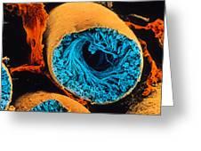Colour Sem Of Seminiferous Tubule Of The Testis Greeting Card